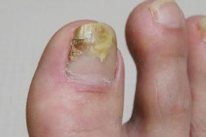 足の爪が○○で足湯やフットマッサージに行けなかった私